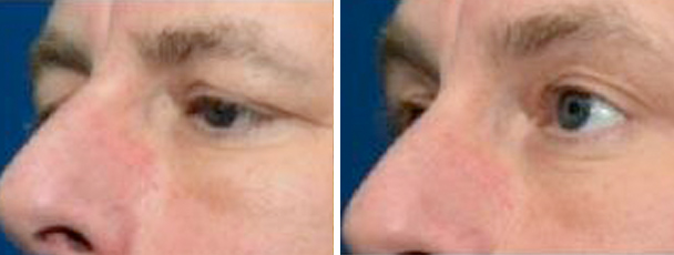 man face before and after patient left side photo 9