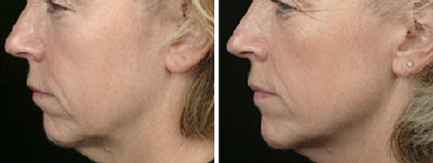 woman face before and after patient left side photo 11