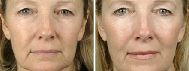 woman face before and after patient front photo 13