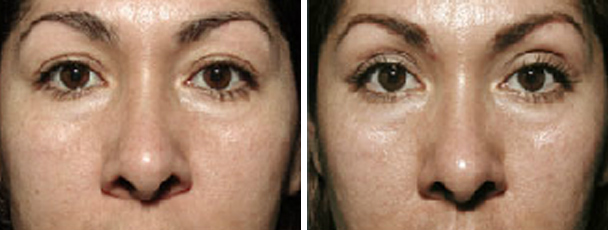 woman face before and after patient front photo 14
