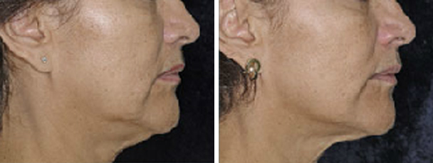 woman face before and after patient right side photo 15