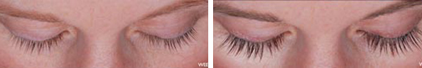 woman face before and after patient eyes front photo 18