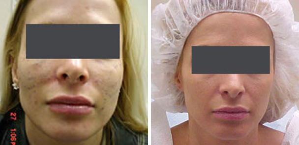 woman face before and after patient front photo 1