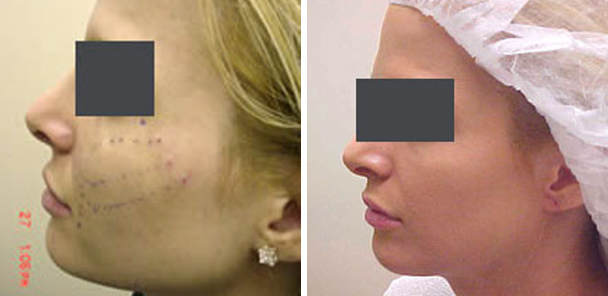 woman face before and after patient left side photo 3