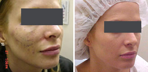 woman face before and after patient right side photo 4