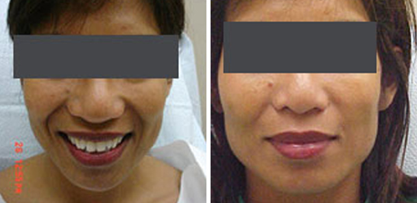 woman face before and after patient front photo 5