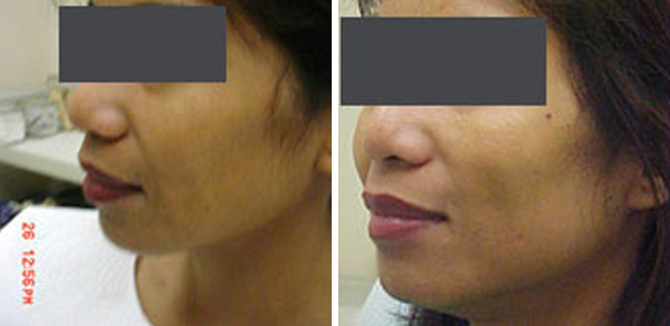 woman face before and after patient left side photo 6