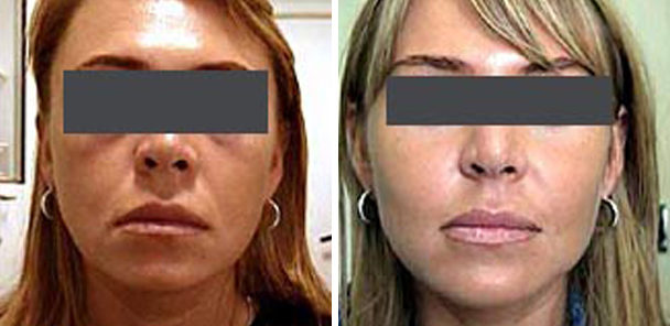 woman face before and after patient front photo 7