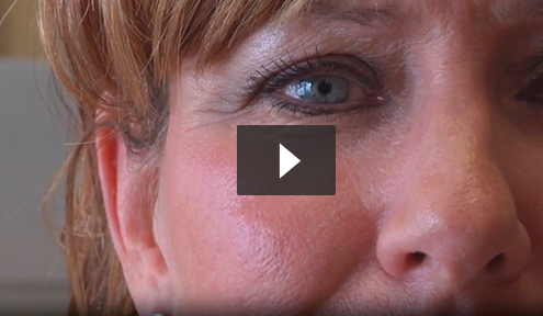 Stem Cell Facelift video3
