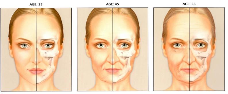 Skin chart